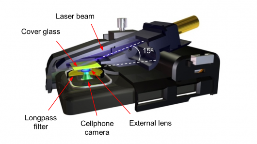 Smartphone Microscopes: Bedside Lab Work?
